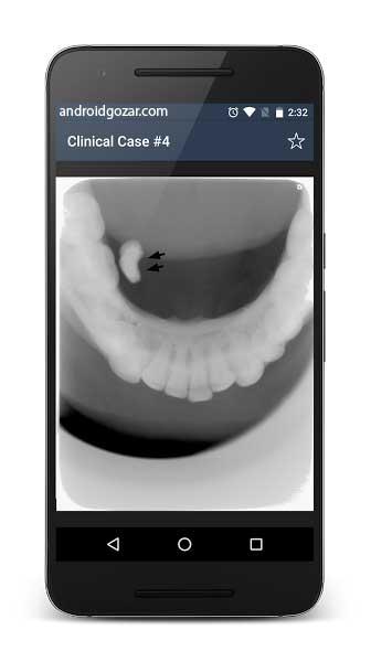 oral-radiology-4